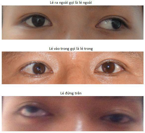 Bệnh lé (bệnh lác) mắt nguyên nhân và cách điều trị - Bệnh Viện Mắt Sài Gòn